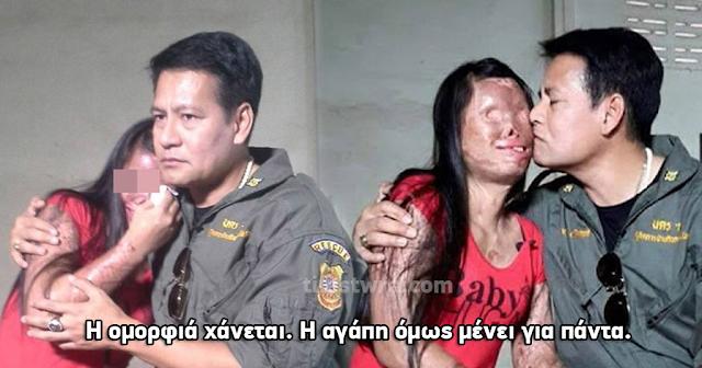 Παραμορφώθηκε από ατύχημα αλλά ο σύντροφός της έδειξε σε όλον τον κόσμο τι σημαίνει αγάπη