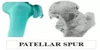 Patellar Spur