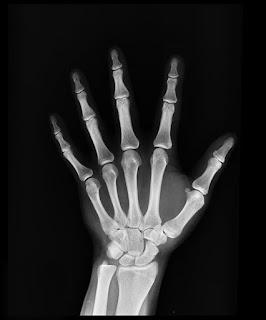 hands-bones