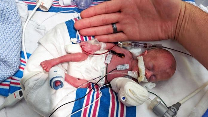 Un paio di forbici salvano la vita a una neonata