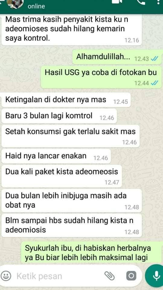 Adenomyosis Penyebab Pendarahan Saat Haid