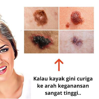 nevus pigmentosus