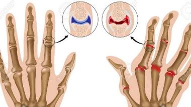 Viêm đau khớp ngón tay: Nguyên nhân, triệu chứng và cách điều trị