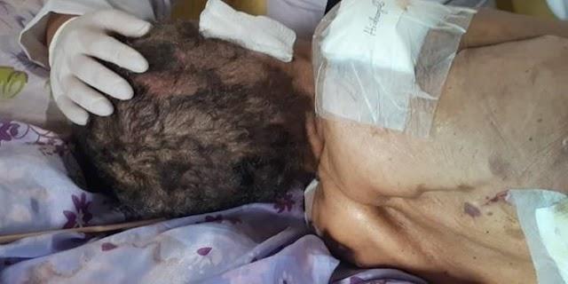 Filha é presa após manter mãe idosa com ferida aberta até o pulmão