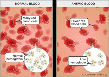 Cara nak tingkatkan Hemoglobin (Hb) Darah Ketika Mengandung