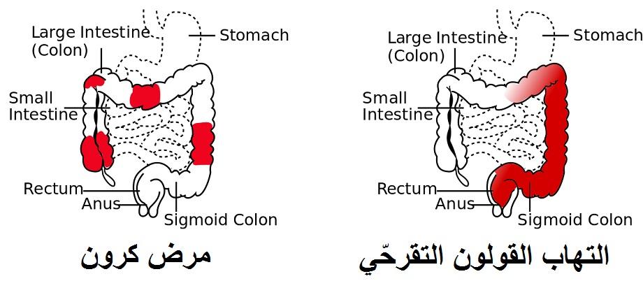 مرض كرون والتهاب القولون التقرحّي
