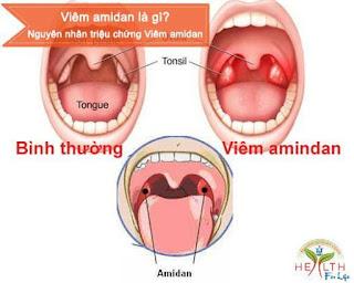 Viêm amidan là bệnh như thế nào ?