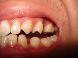 Chỉnh răng thưa ở đâu để mang lại hiệu quả cao cần tìm hiểu kỹ lưỡng trước khi lựa chọn