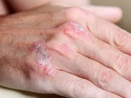 Obat eksim ampuh di kaki dan tangan