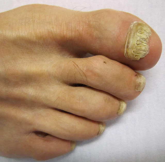 discolored toenails, discolored toenails pictures, discolored toenails treatment, toenail discoloration from nail polish, purple discoloration under big toenail, melanoma toenail, black toenail cancer, black toenail fungus, yellow toenails diabetes,