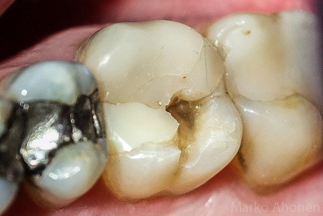 Lohjenneen Hampaan Paikkaus