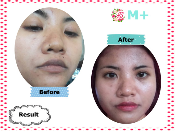 Result Pemakaian Cica Mask