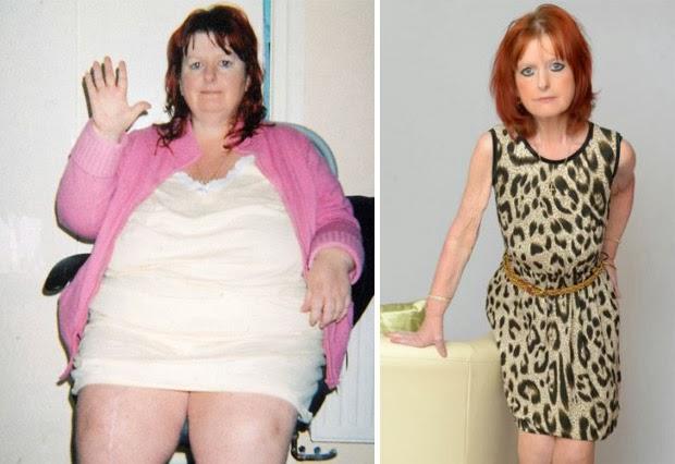 Ex obesa se torna anoréxica e não consegue parar de emagrecer