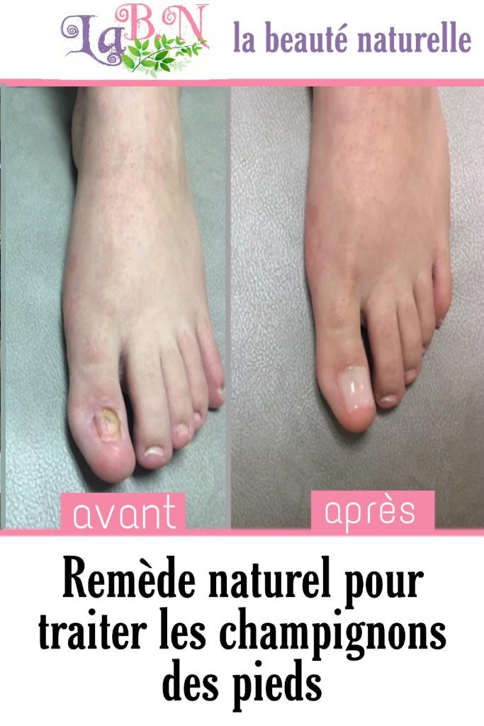 Remède naturel pour traiter les champignons des pieds