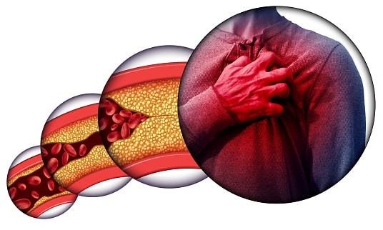 कोलेस्ट्रॉल कितना होना चाहिए, इसके बढ़ने के लक्षण और कारण? | Symptoms of cholesterol in hindi