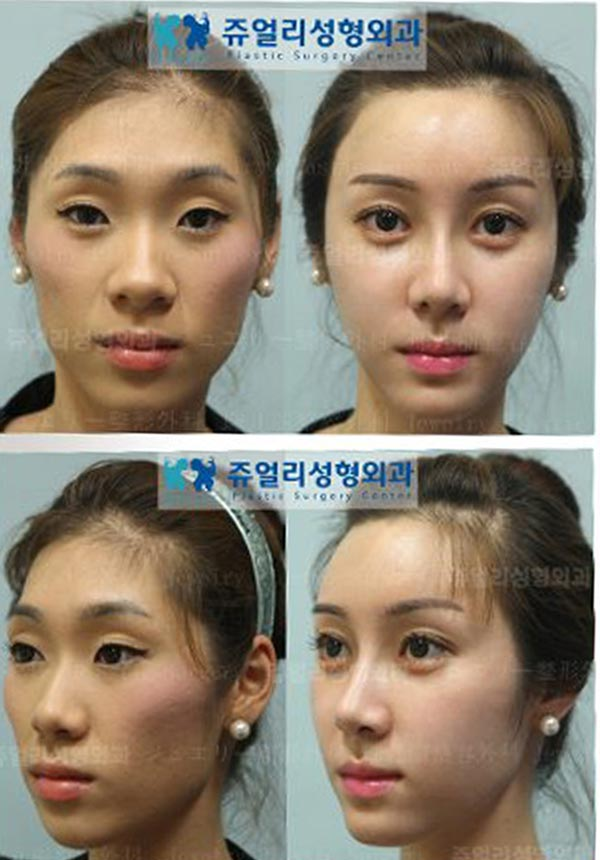 Plastic Surgery Before And After Funnymadworld