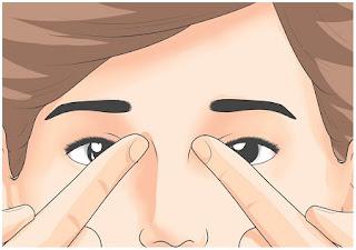 Titik Refleksi Sakit Kepala Sebelah / Migren