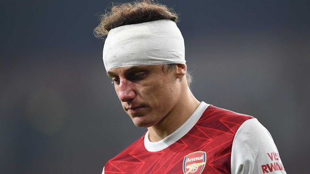 David Luiz to miss Europa League clash after head injury