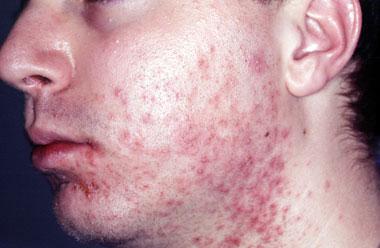 Infizierte Gesichtshaare — bild 3