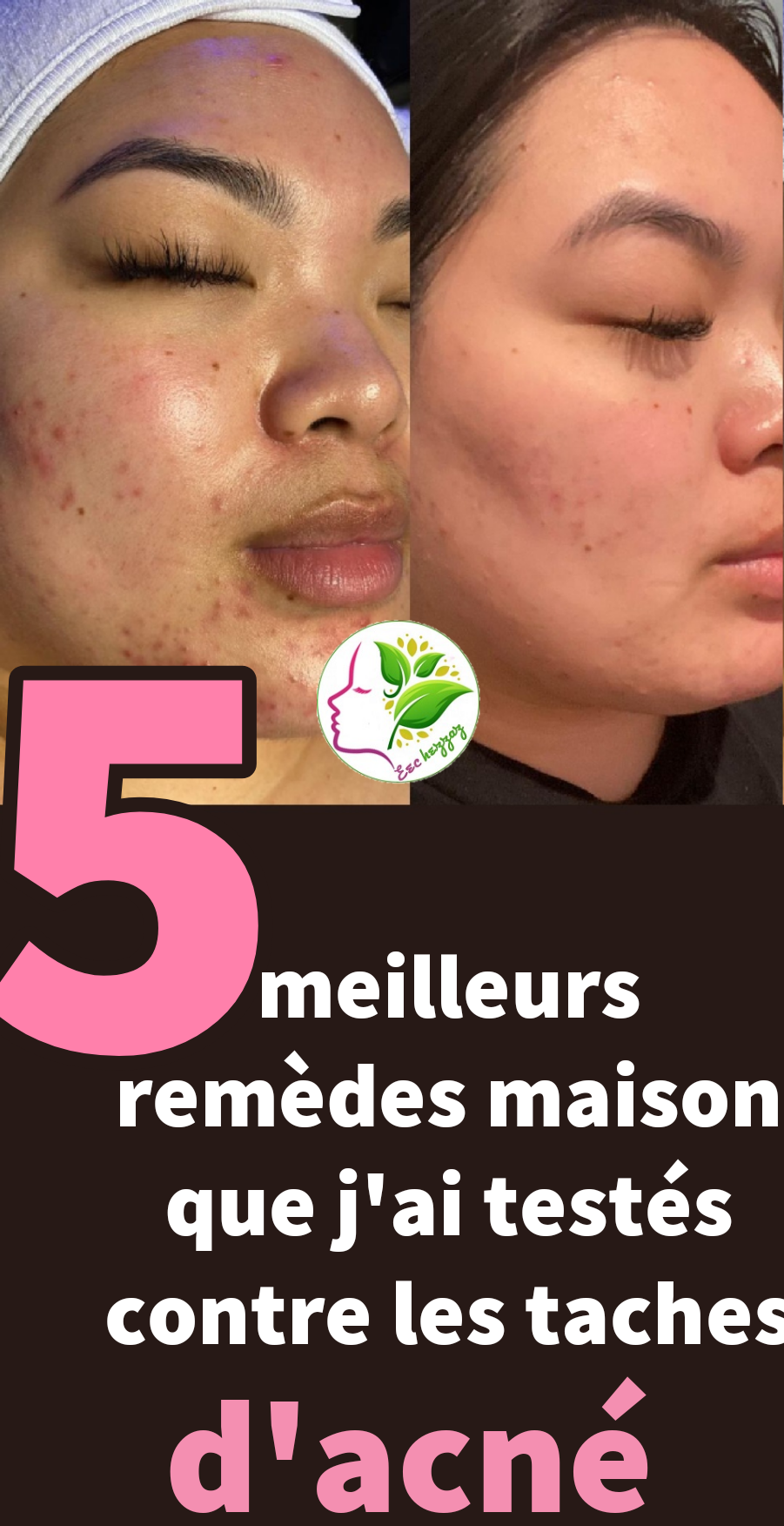 5 meilleurs remèdes maison que j'ai testés contre les taches d'acné