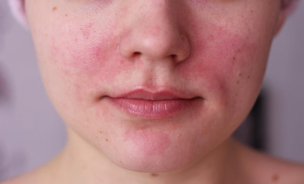 rosacea pictures on face
