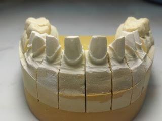 Nha khoa uy tín Q10 Dr Ngọc bọc răng sứ Bảo hành 10 năm 10