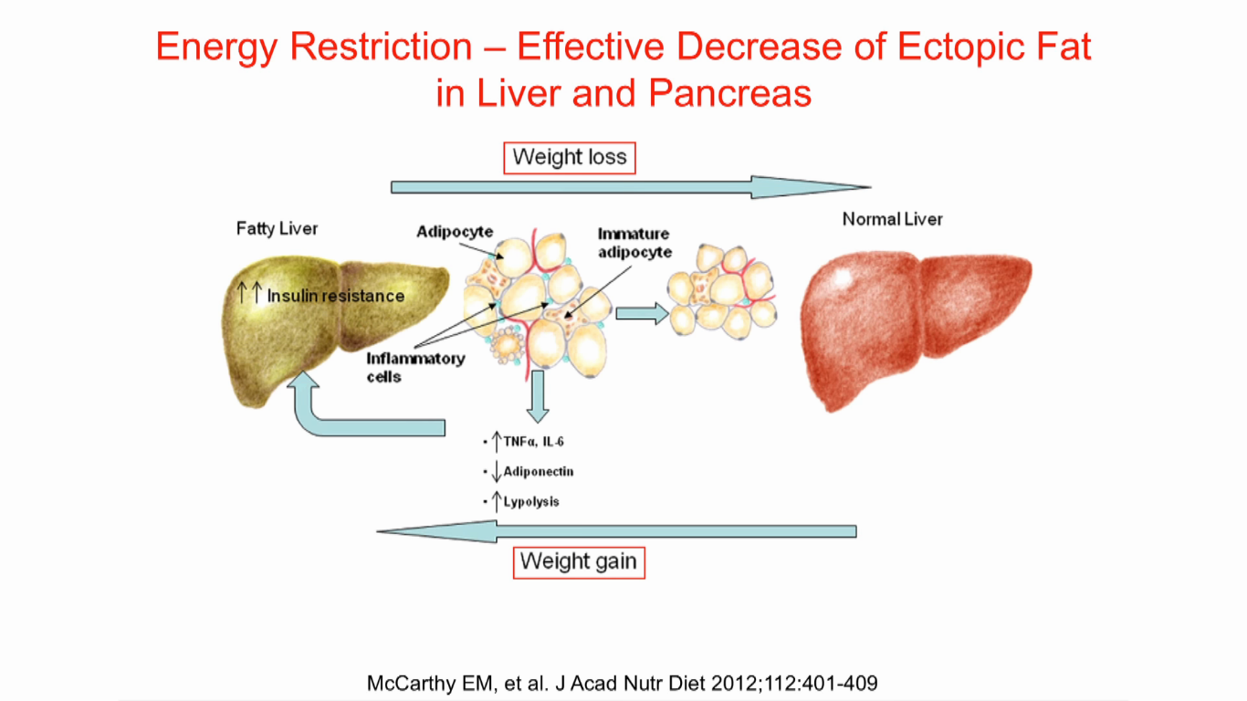 NAFLD and low carb diet - Dr. Nicolai Worm, Breckenridge ...