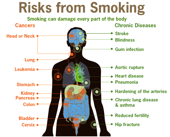 The Risks Of Smoking