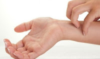 Obat Gatal Tablet dan Cream di Apotik Kimia Farma
