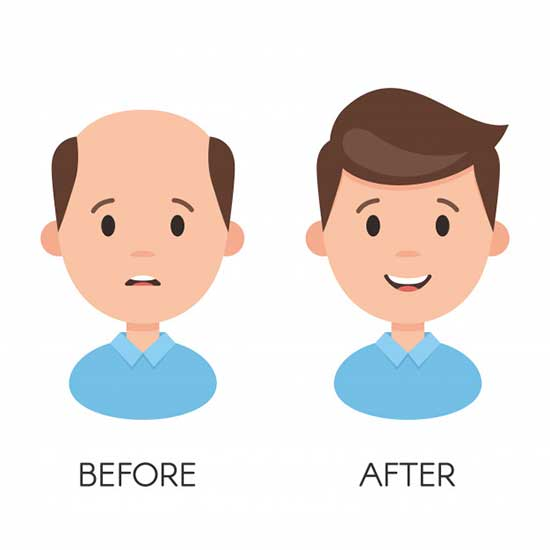 benefits of Hair Transplant surgery I hair loss before after