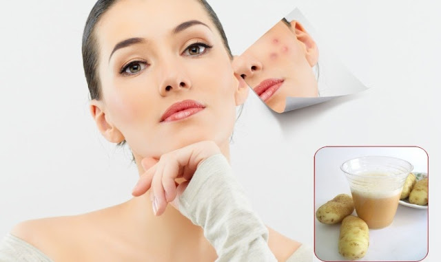 Home remedies To Get Rid Of Acne Scars, Ultratech4you