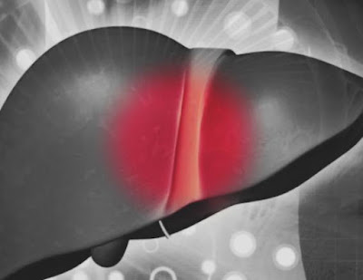 DIETA mediteraneana regim bun pentru ciroza hepatica comentarii bune