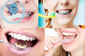 أنواع التقويم الأسنان