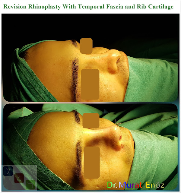 Revision Rhinoplasty With Temporal Fascia and Rib Cartilage Istanbul Turkey