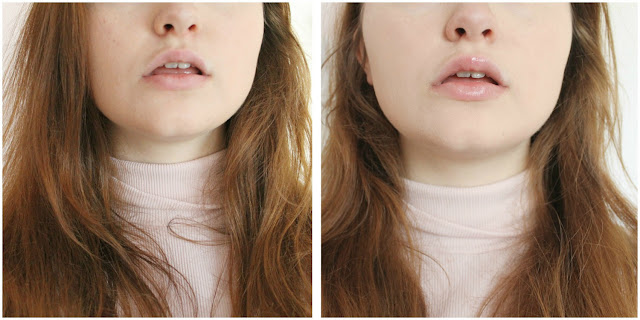 PMD Kiss lip plumping blog review before and after