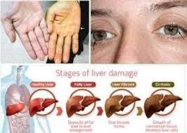 Obat Liver