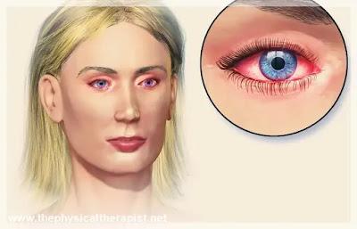 علاج حساسية العين المزمنة: ب 6 طرق منزلية بسيطة