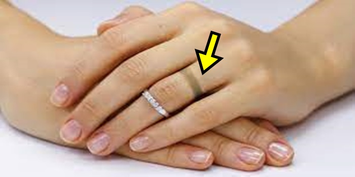 Tips to Get Rid of Ring Mark on Finger