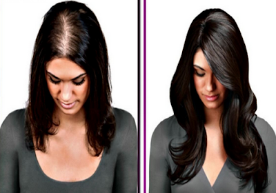 women hair loss, Overcoming hair loss in women you should know, life insurance