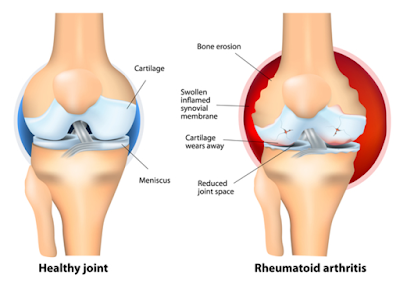 rheumatoid arthritis and normal joint compared