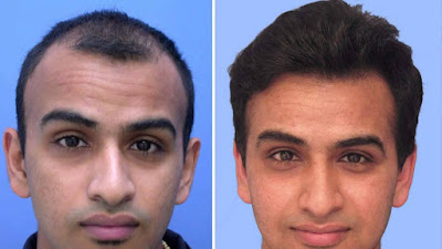 Good- Bye To Baldness, Choose The Treatment Hair Transplant in Chandigarh