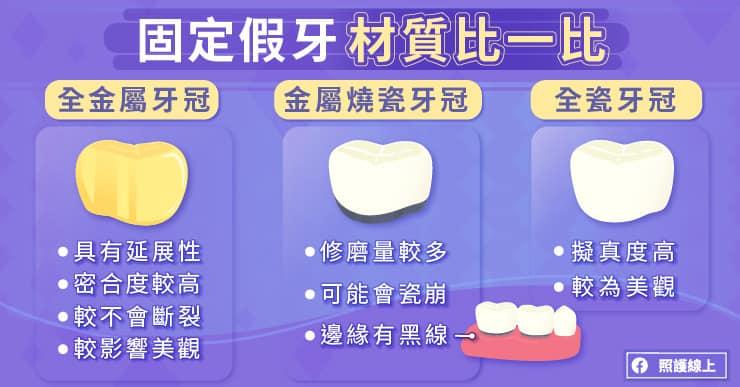 固定假牙材質比一比