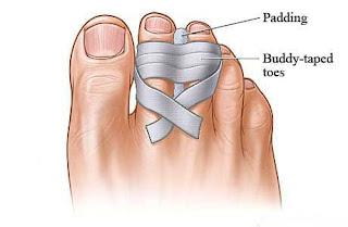 How to wrap toe?