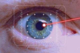 Laser eye surgery, Vision Correction surgery