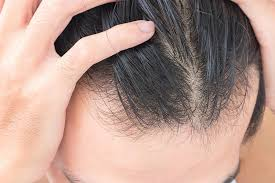 Is This Why Your Hair's Thinning?