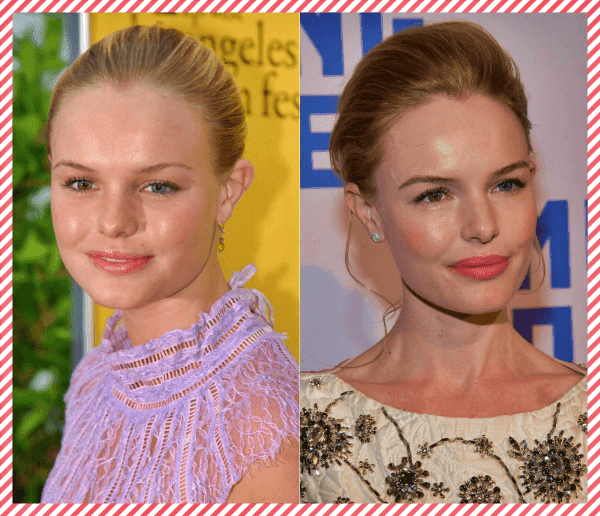 Kate Bosworth Estetik Öncesi ve Sonrası