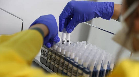 Albanian private clinics roll out antibody test for COVID-19