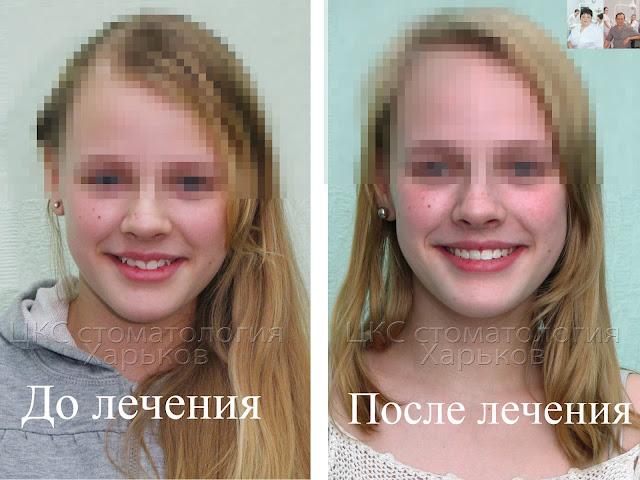 Лицо и улыбка до и после ортодонтического лечения