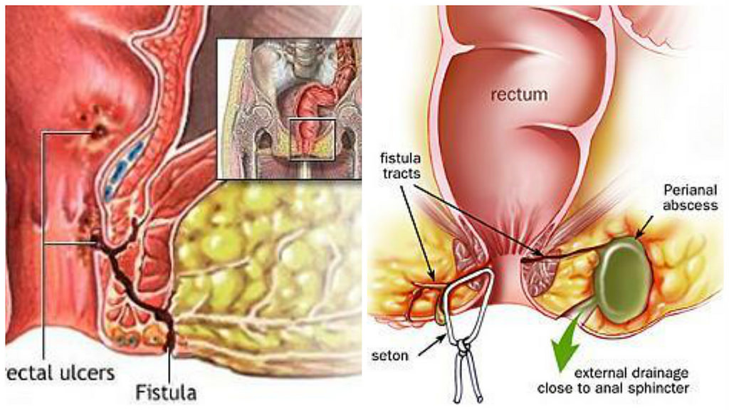Obat Fistula Ani Di Apotik