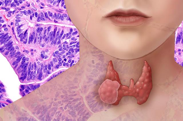 معلومات عن سرطان الغدة الدرقية